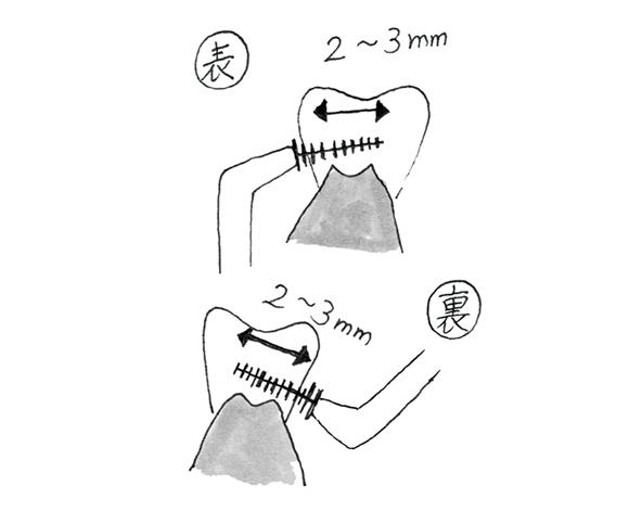 画像: 歯間ブラシは部分的に使う