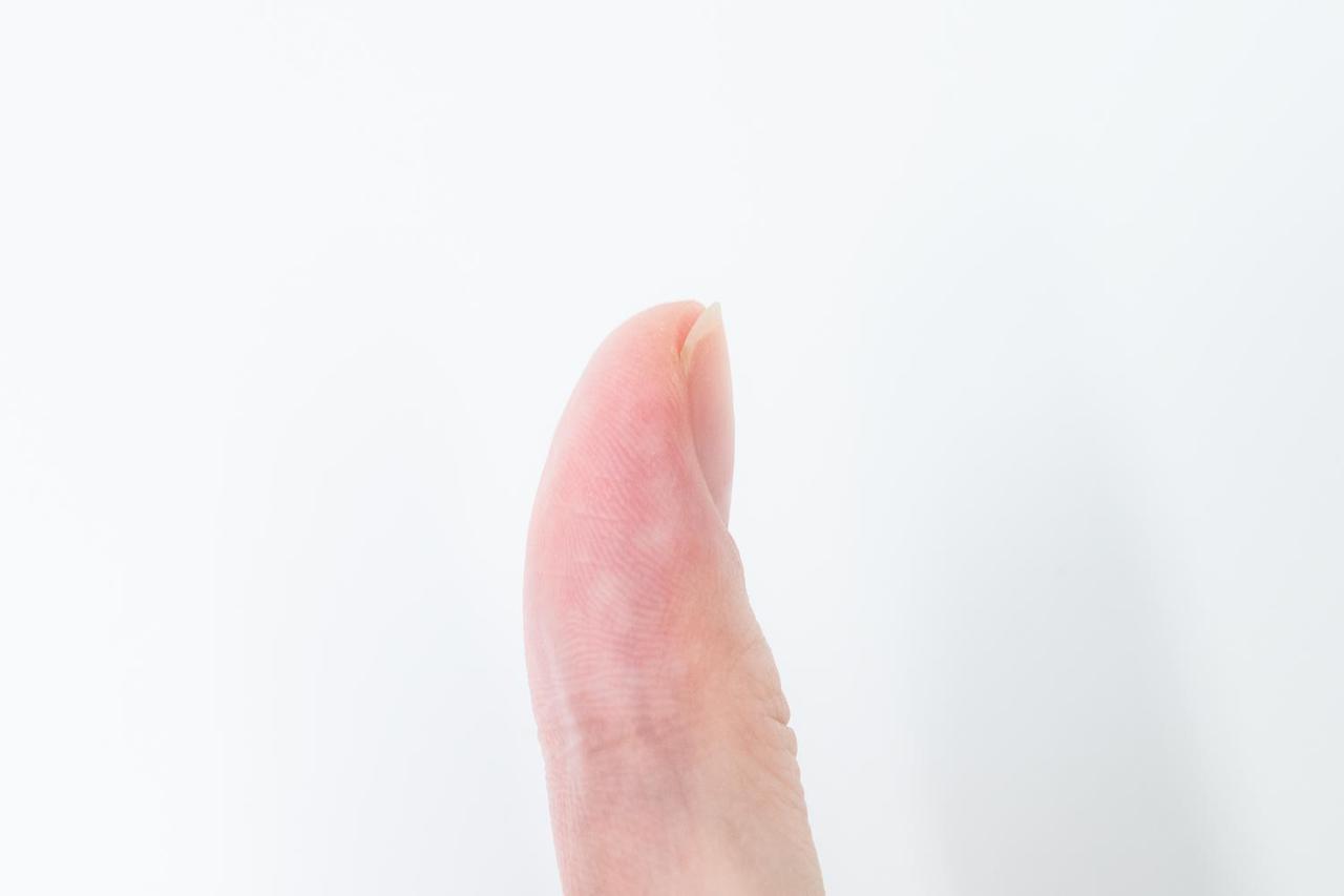 画像: 切った後。爪と指の長さが同じになっている