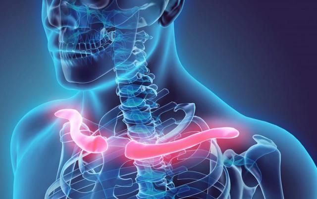 """画像: 鎖骨・・・胸骨と肩甲骨とをつなぎ上半身肩構造を支持する重要な、その上 """"人体で最も折れやすい骨"""" 。"""
