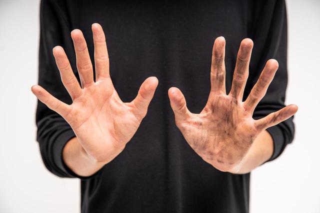 画像2: 右手:クリーム有 左手:クリーム無