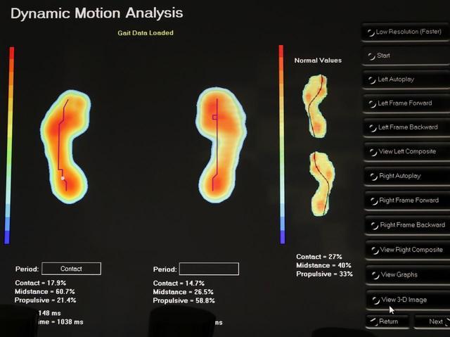 画像: 足底にかかる圧力、体重分布の割合、歩行時の圧力や構造変化などを特殊な計測ソフトで解析