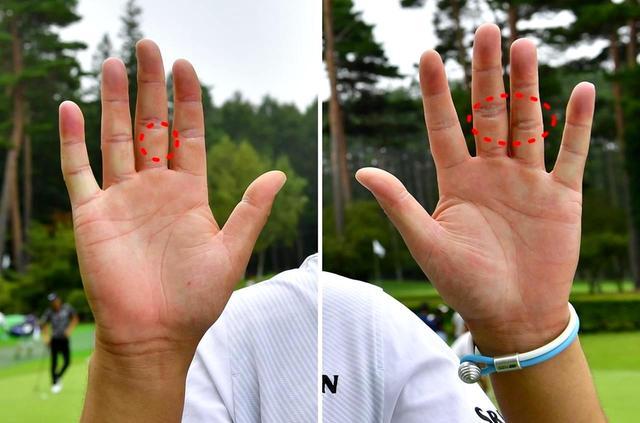 画像: 右手中指の腹にうっすらと、中指と薬指の第二関節にうっすら