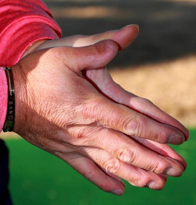 画像: 右親指の障害のおかげで頑張れると考えている。 「指先を失い、逆にうまくなれた。独自の工夫をして前向きに考え克服してきた」