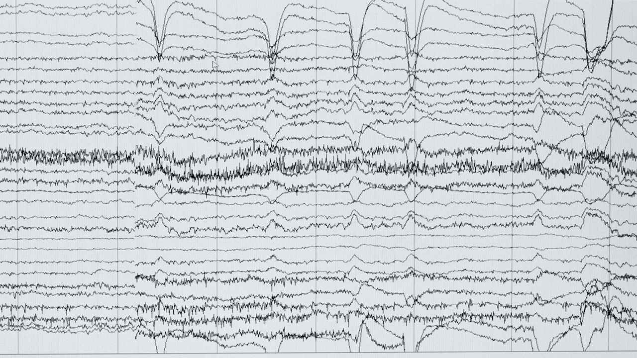 画像: 揺れ幅の差はあるが、波打つ位置はよく似ている