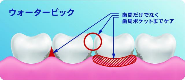 画像2: 世界シェアNo.1ブランド 次世代デンタルフロス『Waterpik』が日本上陸