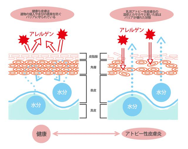 画像: 出典:海老澤 元宏(監)「食物アレルギーのすべてがわかる本」講談社, p72を参考に作成
