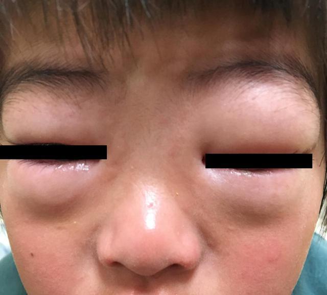 画像: 突然、目がかゆいと言い出し、見る見るまぶたが腫れた