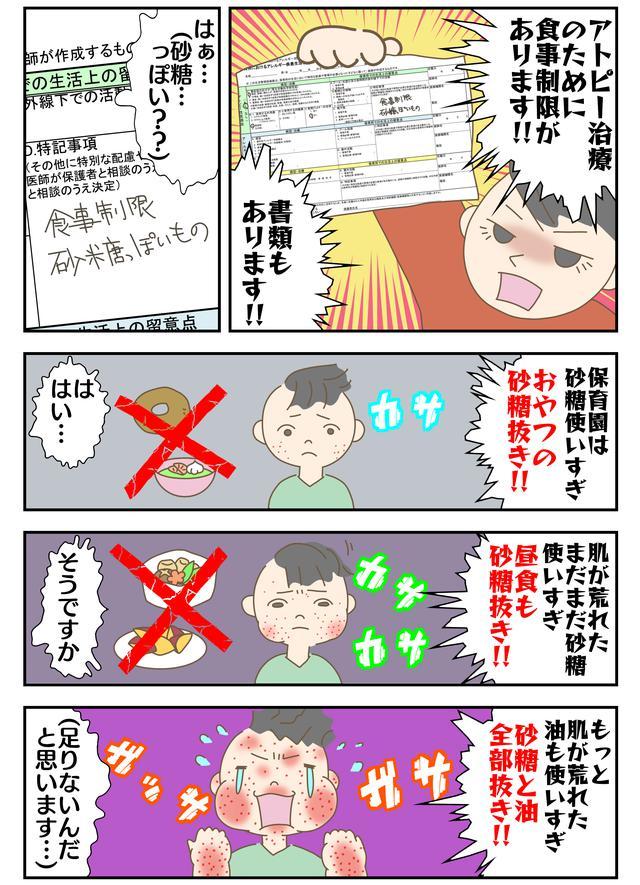 画像: アトピー治療のために食事制限!?