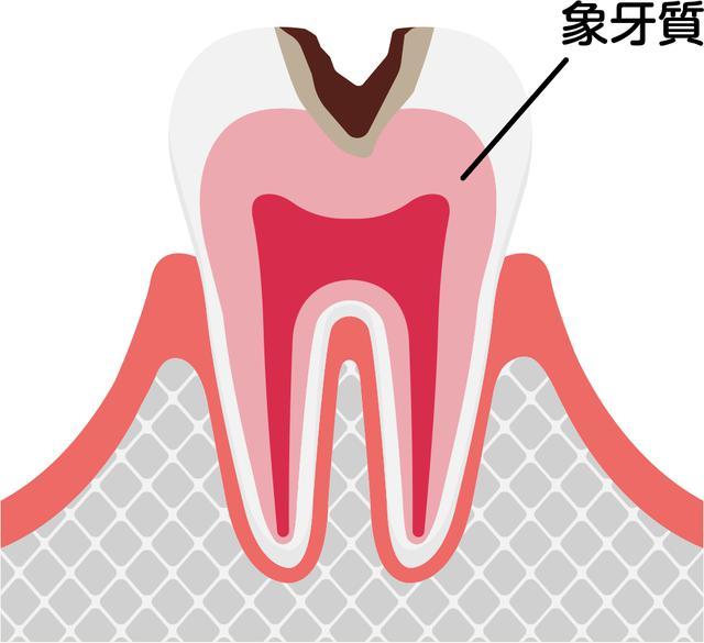 画像2: 画像:iStock.com/ Barks_japan