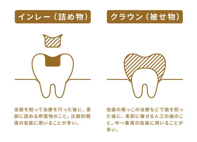 画像: (3)虫歯(欠損)の治療