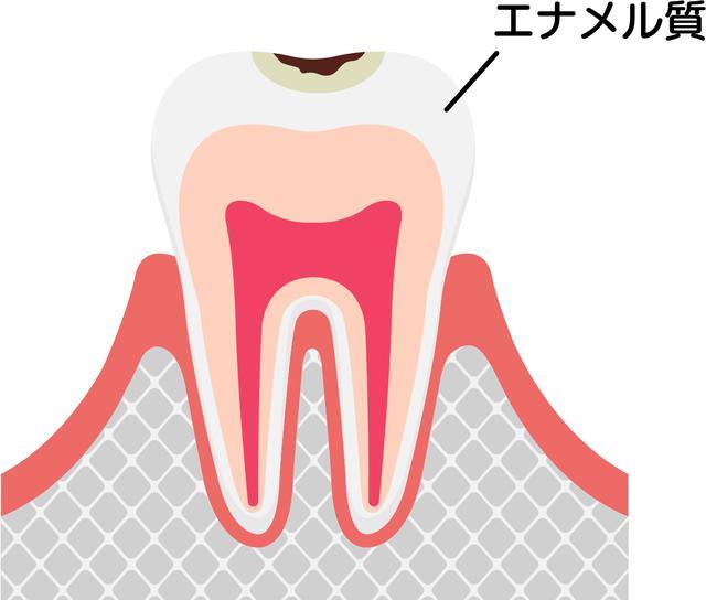 画像1: 画像:iStock.com/ Barks_japan