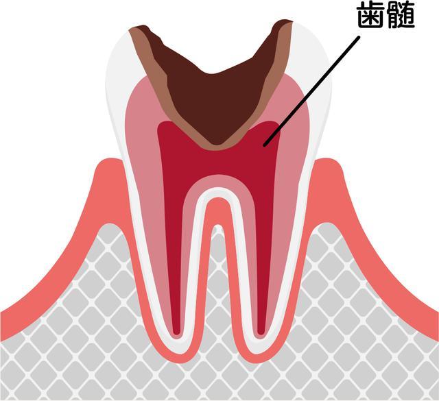 画像3: 画像:iStock.com/ Barks_japan
