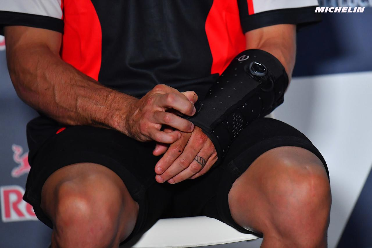 画像: クラッチロウ、左手首舟状骨を骨折! ここ長引くところなんだけど、もう復帰って……