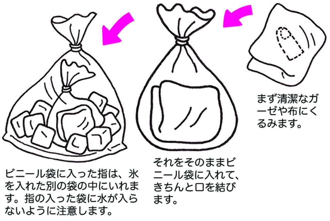 画像: ポイントは指を直接氷や水につけないこと 出典:子ども医学館 www.babycome.ne.jp