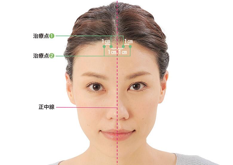 画像1: 「症状別の髪の生え際押し」のやり方