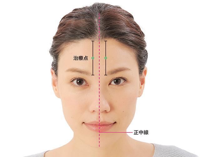 画像15: 「症状別の髪の生え際押し」のやり方