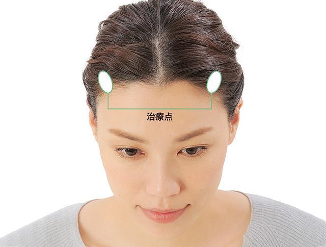 画像4: 「症状別の髪の生え際押し」のやり方