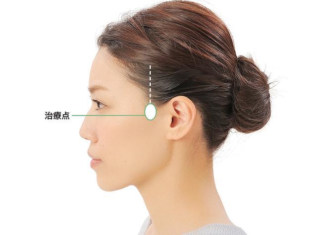 画像6: 「症状別の髪の生え際押し」のやり方