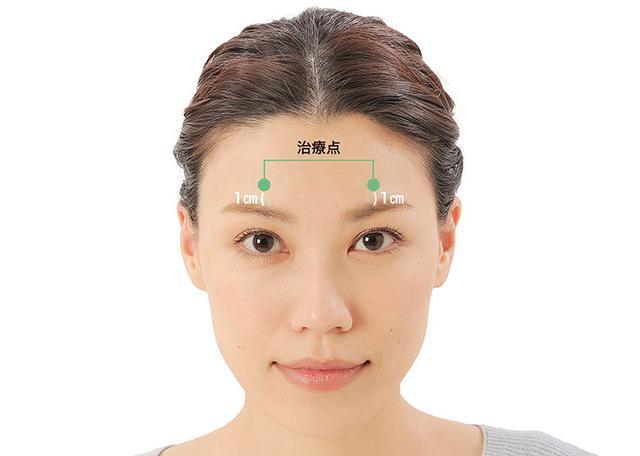画像8: 「症状別の髪の生え際押し」のやり方