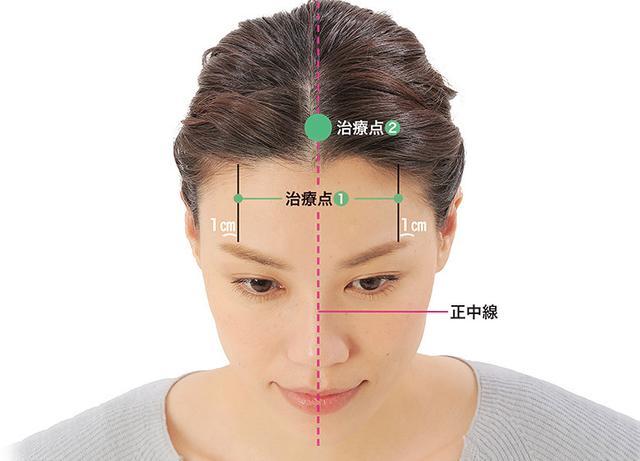 画像10: 「症状別の髪の生え際押し」のやり方
