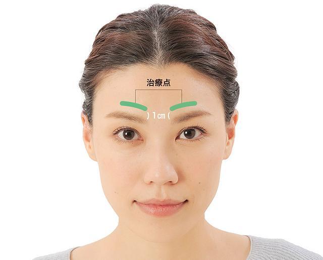 画像19: 「症状別の髪の生え際押し」のやり方