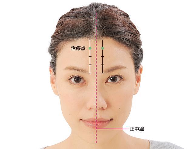 画像13: 「症状別の髪の生え際押し」のやり方
