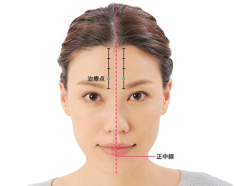 画像17: 「症状別の髪の生え際押し」のやり方