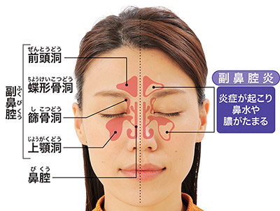 画像: カゼをひきやすくなり副鼻腔炎を招く口呼吸