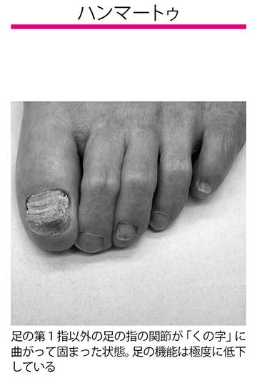 画像: サイズの合わない靴で指が曲がる