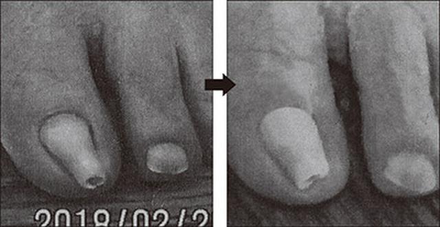 画像: 骨たたきを始める前の足の指(写真左)と始めて半年後の足の指(写真右)。完全に丸まっていた爪が、少し平らになってきているのが分かる。