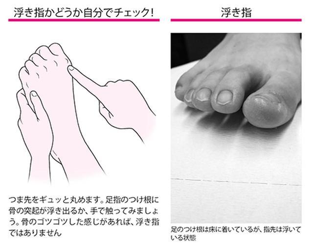 画像2: 足裏にタコやウオノメができる