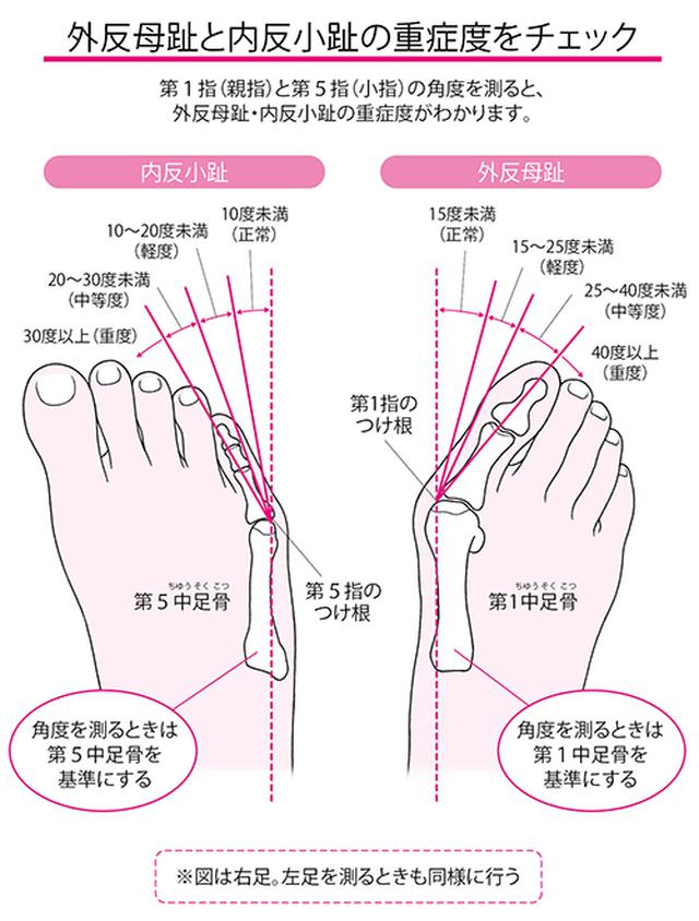 画像2: 親指の付け根や内側が硬くなる