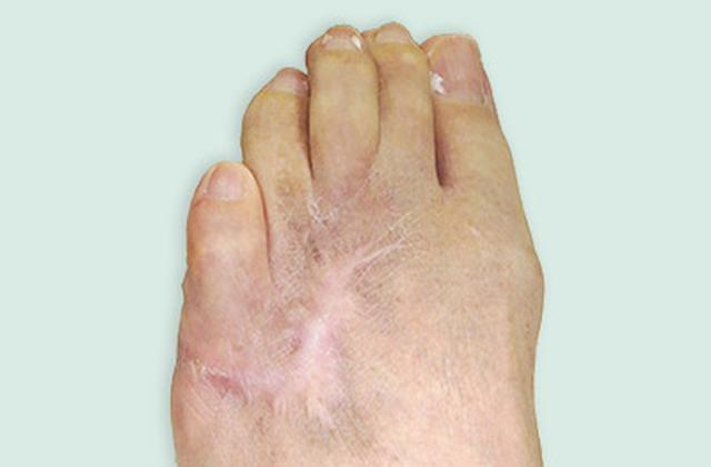 画像: 南部さんの左足には、今も骨髄炎の傷跡が残る