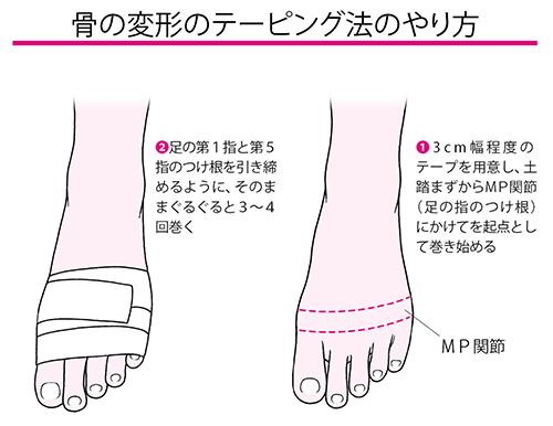 画像2: 外反母趾の予防と対策