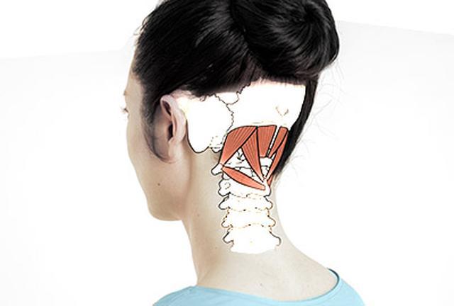 画像: 首のゆがみが自律神経失調の引き金