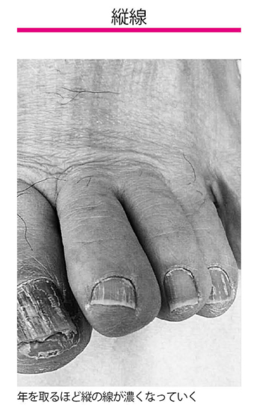 画像2: 二枚爪