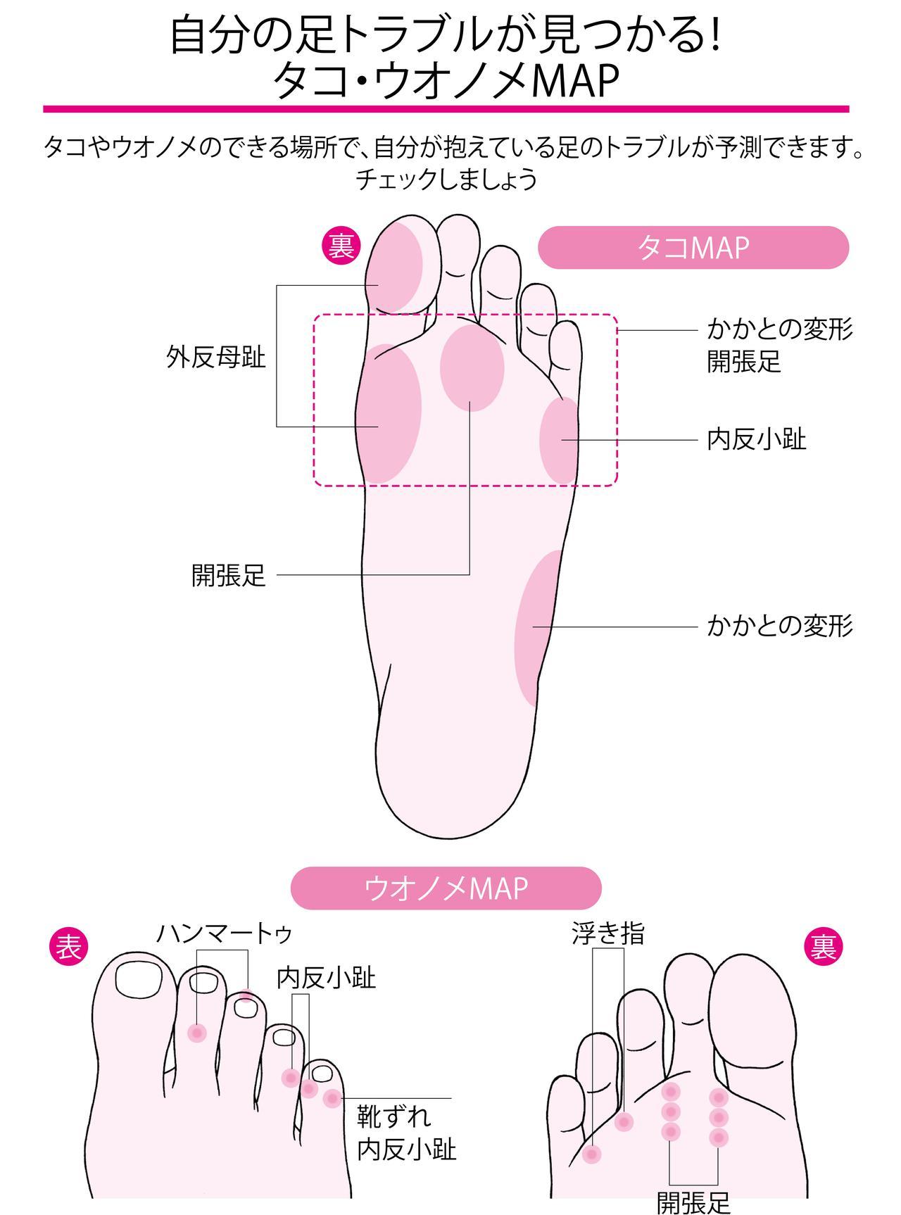 画像2: 足の変形や姿勢の悪さが背景に