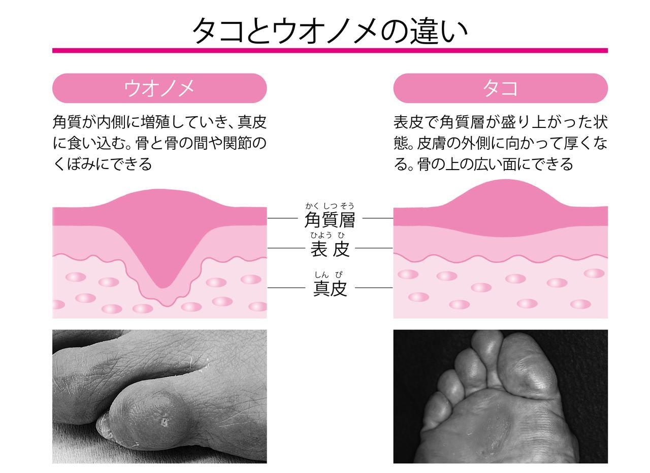 画像1: 足の変形や姿勢の悪さが背景に