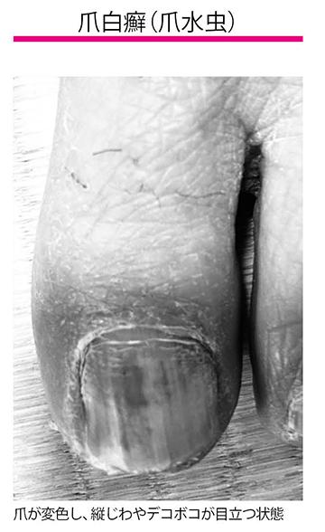 画像: 爪白癬とは