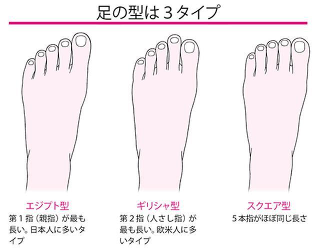 画像2: 爪甲下角質増殖