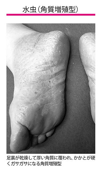 画像: ❸角質増殖型 足裏が乾燥して厚い角質に覆われたり、かかとが硬くガサガサになったりします。皮がむけたり、ひび割れて痛みを伴ったりすることがありますが、かゆみはありません。
