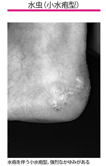 画像: ❷小水疱型 足指の間や指の腹、足裏、足裏の縁などにできる水疱を伴う水虫です。水疱が集まって赤くなることもあり、強烈なかゆみがあります。