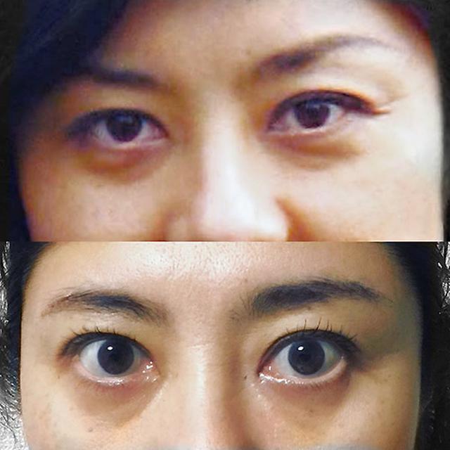 画像: 何歳からでも目はパッチリ開く!