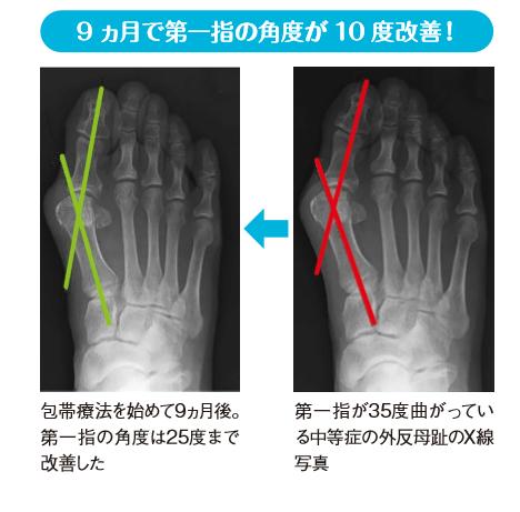 画像: 痛みだけでなく変形も改善する
