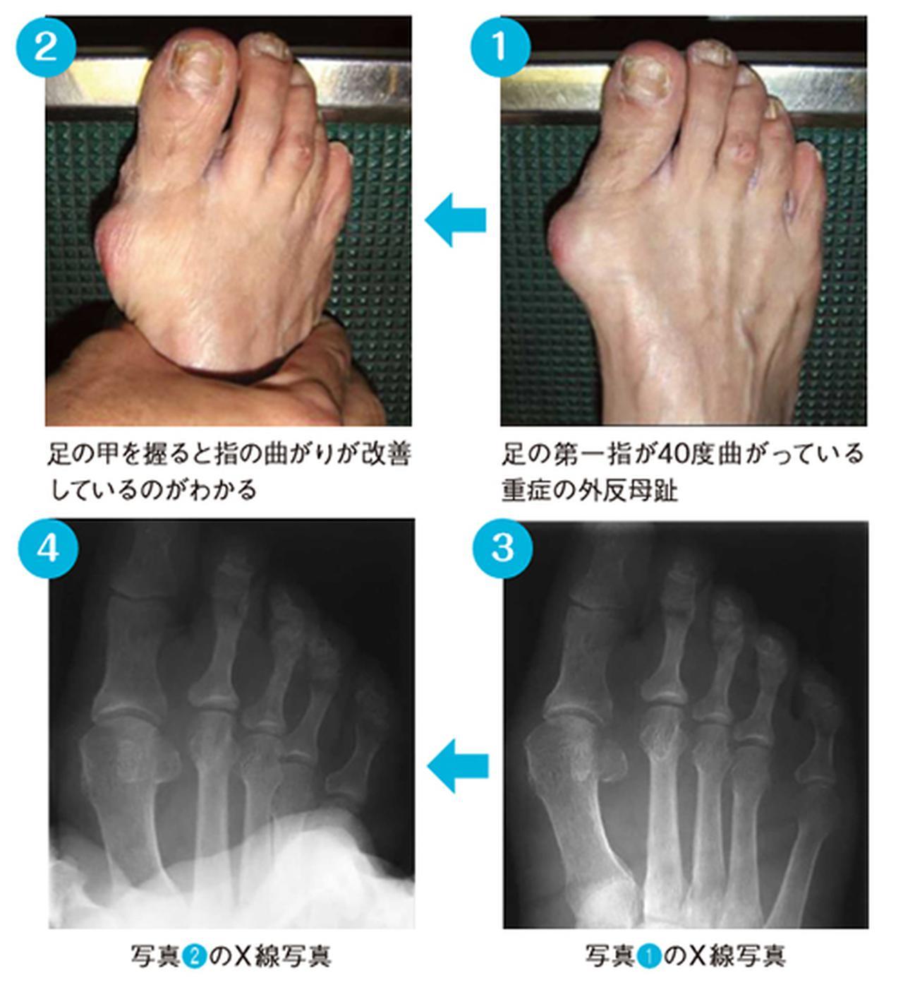 画像: 足の甲を締めると指の変形が改善