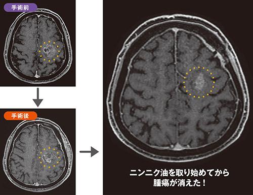 画像: 60代男性の脳の画像 手術で取りきれなかった脳の腫瘍が消えた!