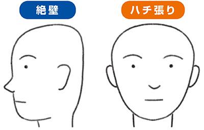の 痛み 頂部 頭 これって病気?頭皮を押すと痛みを感じるときの原因と対処法