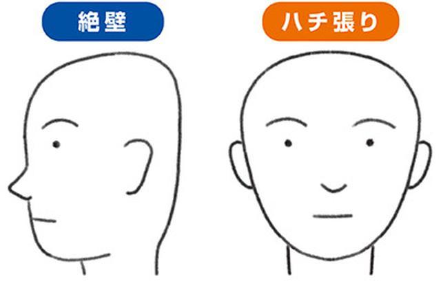 画像: 絶壁: 頭頂部からうなじにかけて、後頭部の丸みが少ない状態。 ハチ張り: 頭頂部のカーブ(ハチ)が張っている状態。