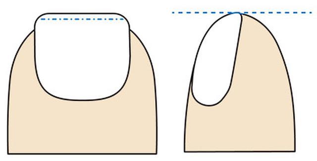 画像: 先端の白い部分を残すのが正しい切り方。足指を横から見たとき、高さが揃っていると◎
