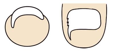 画像: 陥入爪 爪が皮膚に食い込み、炎症を起こした状態。
